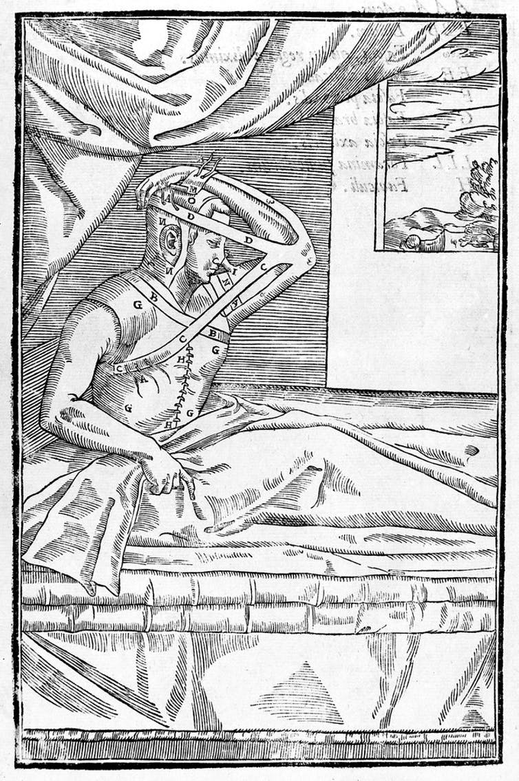 Black and white illustration of a man in bed with his arm attached to his head.
